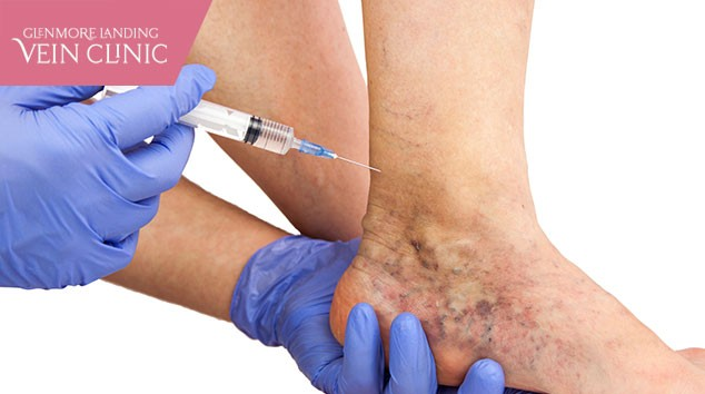 4 Reasons to Opt For a Customized Varicose Vein Treatment