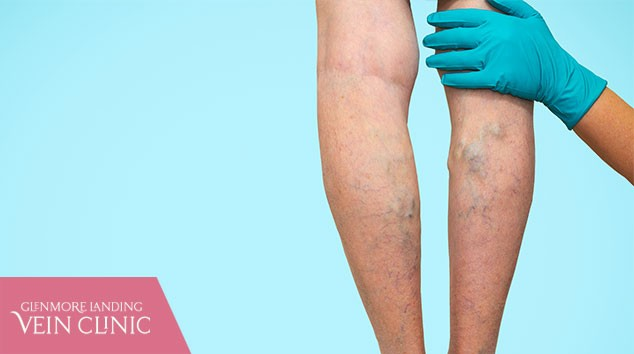 Top Signs You're a Good Candidate For Varicose Vein Treatment