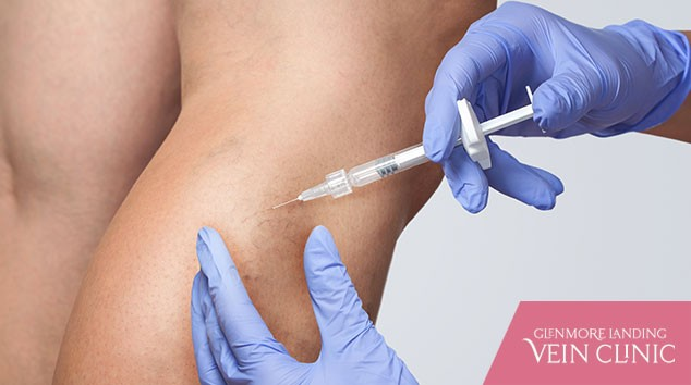 Your Total Guide to a Sclerotherapy Treatment