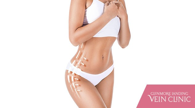 How to Decide Between CoolSculpting and Liposuction