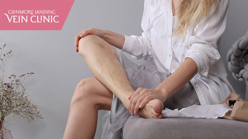 5 Simple Tips to Prevent Your Varicose Veins From Getting Worse