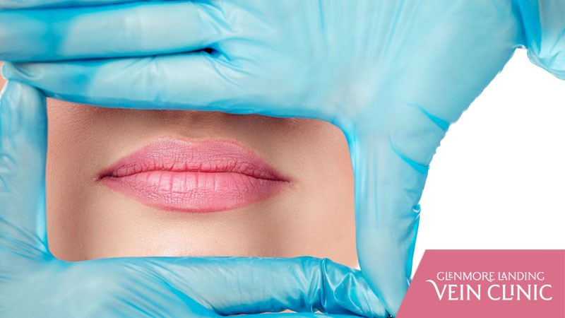 7 Key Benefits of a Juvederm Lip Filler Treatment