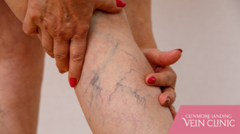 Find Freedom From Varicose Vein Pain With These 3 Powerful Treatments